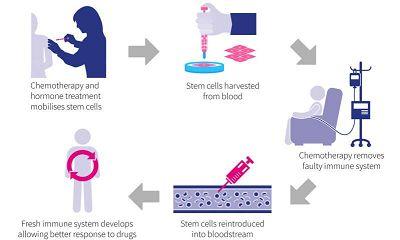 干细胞疗法有助于治疗克罗恩氏病?