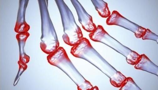 澳大利亚开展大规模间充质干细胞治疗骨关节炎临床试验